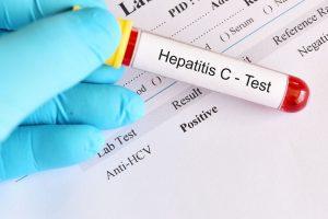 آزمایش تشخیص هپاتیت C