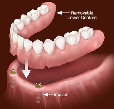 پروتز دندانی اوردنچر