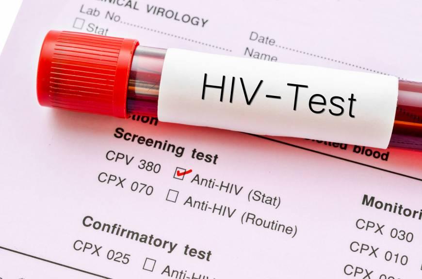 هزینه آزمایش ایدز، مراکز آزمایش رایگان ایدز