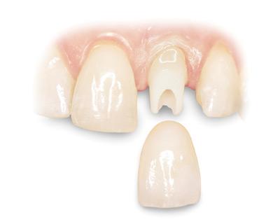 روکش تک واحدی دندان