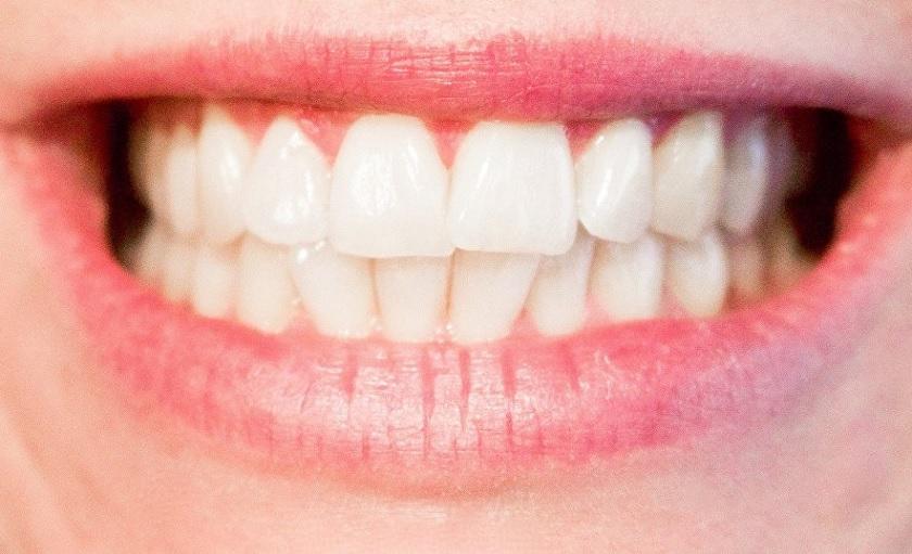 پوسیدگی دندان و نکات بهداشتی